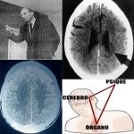 La-Radio-Liberada-La-Nueva-Medicina-del-Dr.-Hamer-copia
